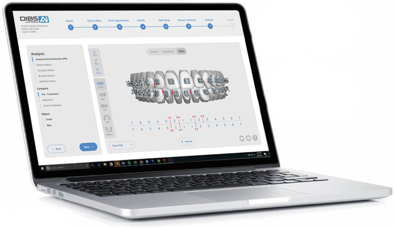 OrthoSelect to Launch New DIBS AI Software