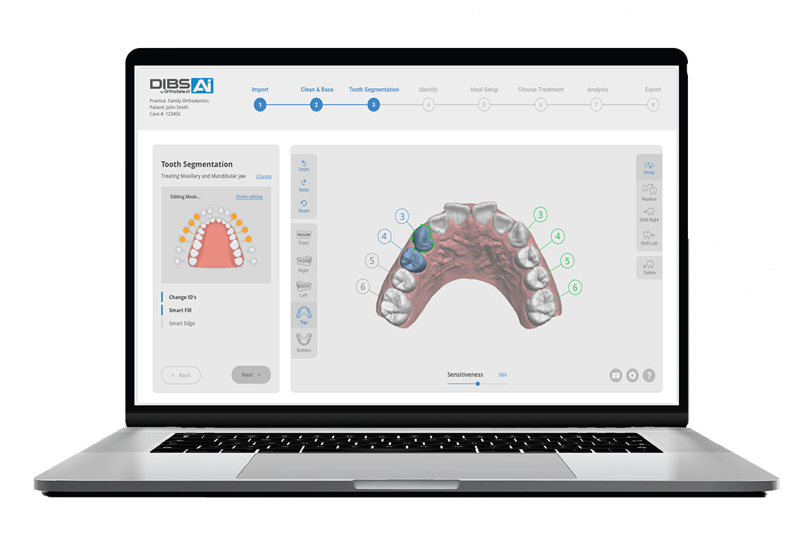 OrthoSelect Releases New DIBS AI Software